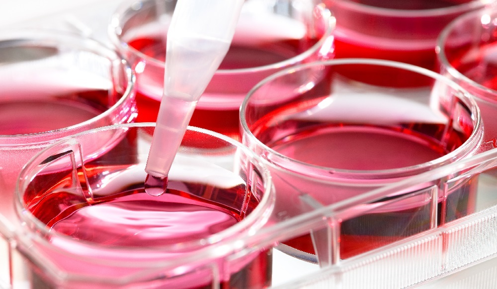 New Liquid Biopsy Tests Aim to Prevent Cancer Mortality