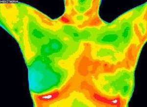 Abnormal breast scan.