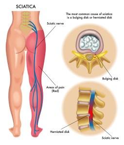 Sciatica Chiropractic Care Longmont