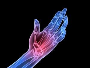 Arthritis Chiropractic Care Longmont