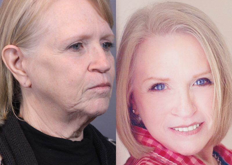 Peggy Giesecke Before & After