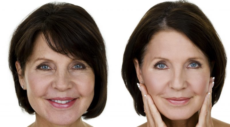 iStock Before & After (cropped)