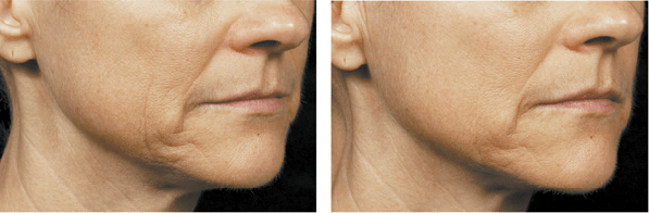 Thermage jawline B&A