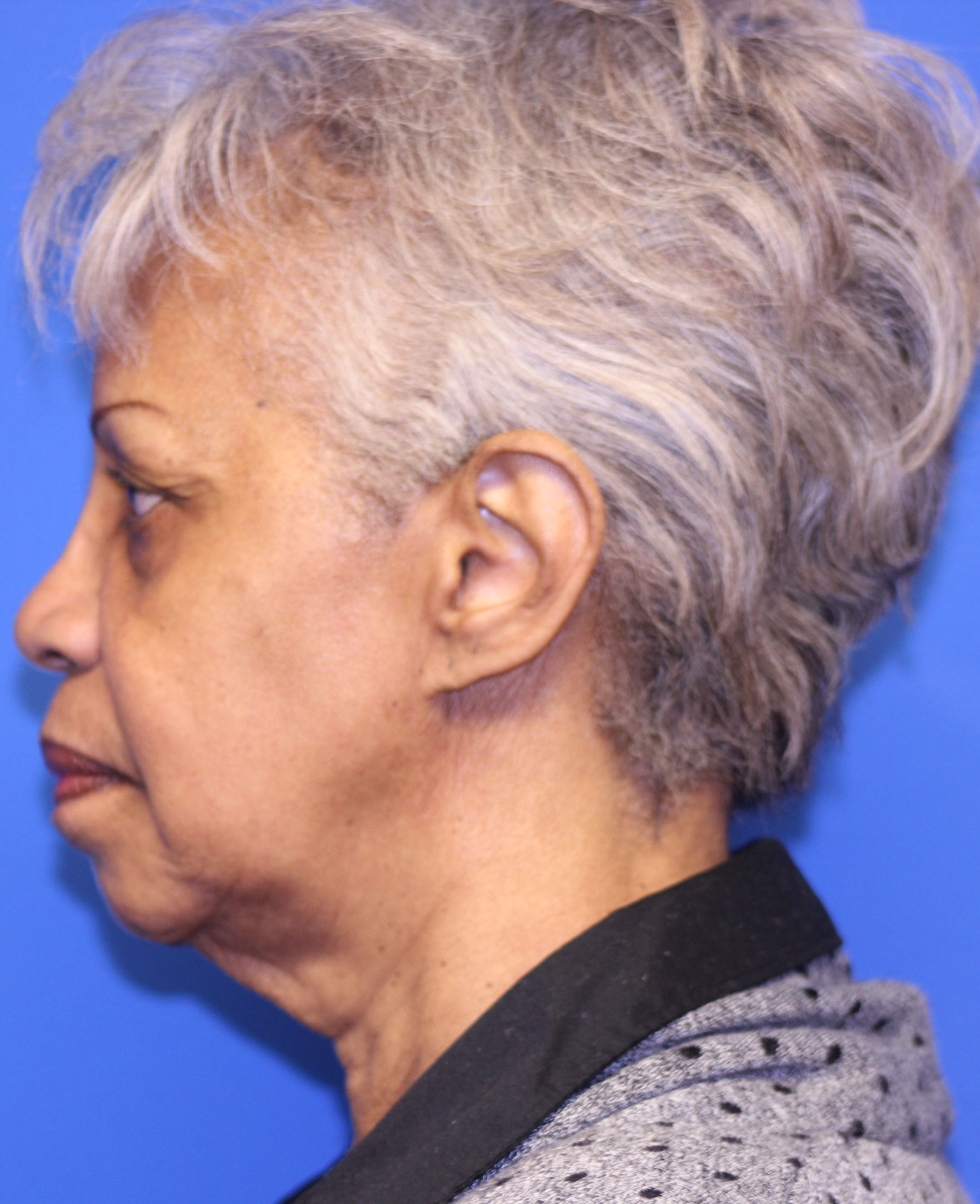 Black woman Before facelift LS-C