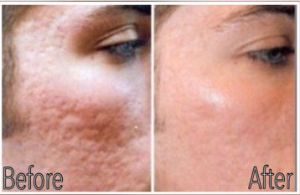 Microneedling acne scars B & A