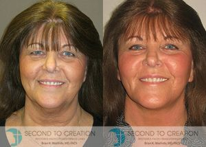 Facelift and neck lift by Dr. Brian Machida, facial plastic surgeon, Inland Empire, California - Before & After