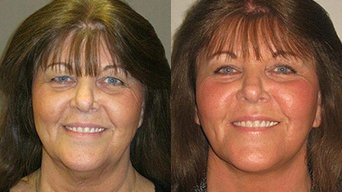 , facelift vs fillers, facelift, Inland Empire, facelift Inland Empire, Dr. Brian Machida, facial plastic surgeon, Inland Empire, California