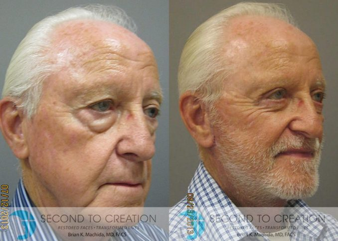 blepharoplasty, bags under eyes, by Dr. Brian Machida, facial plastic surgery, Inland Empire, CA