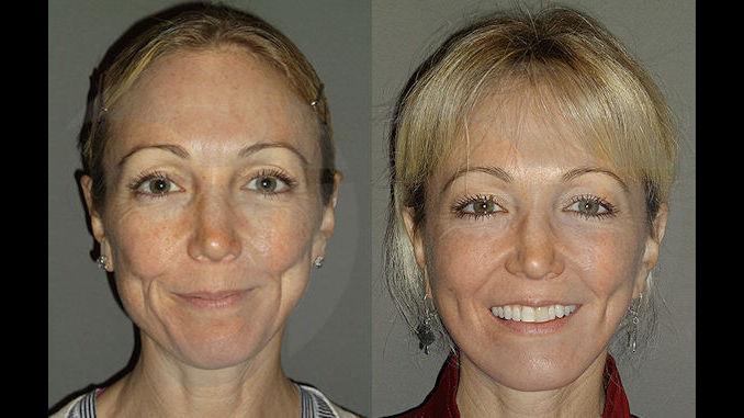 facial plastic surgery, Inland Empire, facelift, Dr. Brian Machida