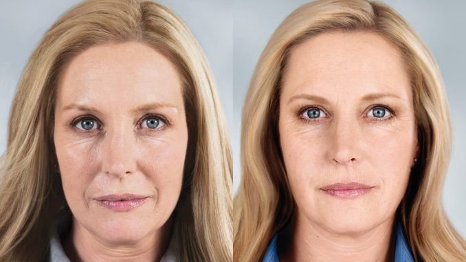 Sculptra Before and After photo available from Dr. Brian Machida, facial plastic surgeon Inland Empire CA