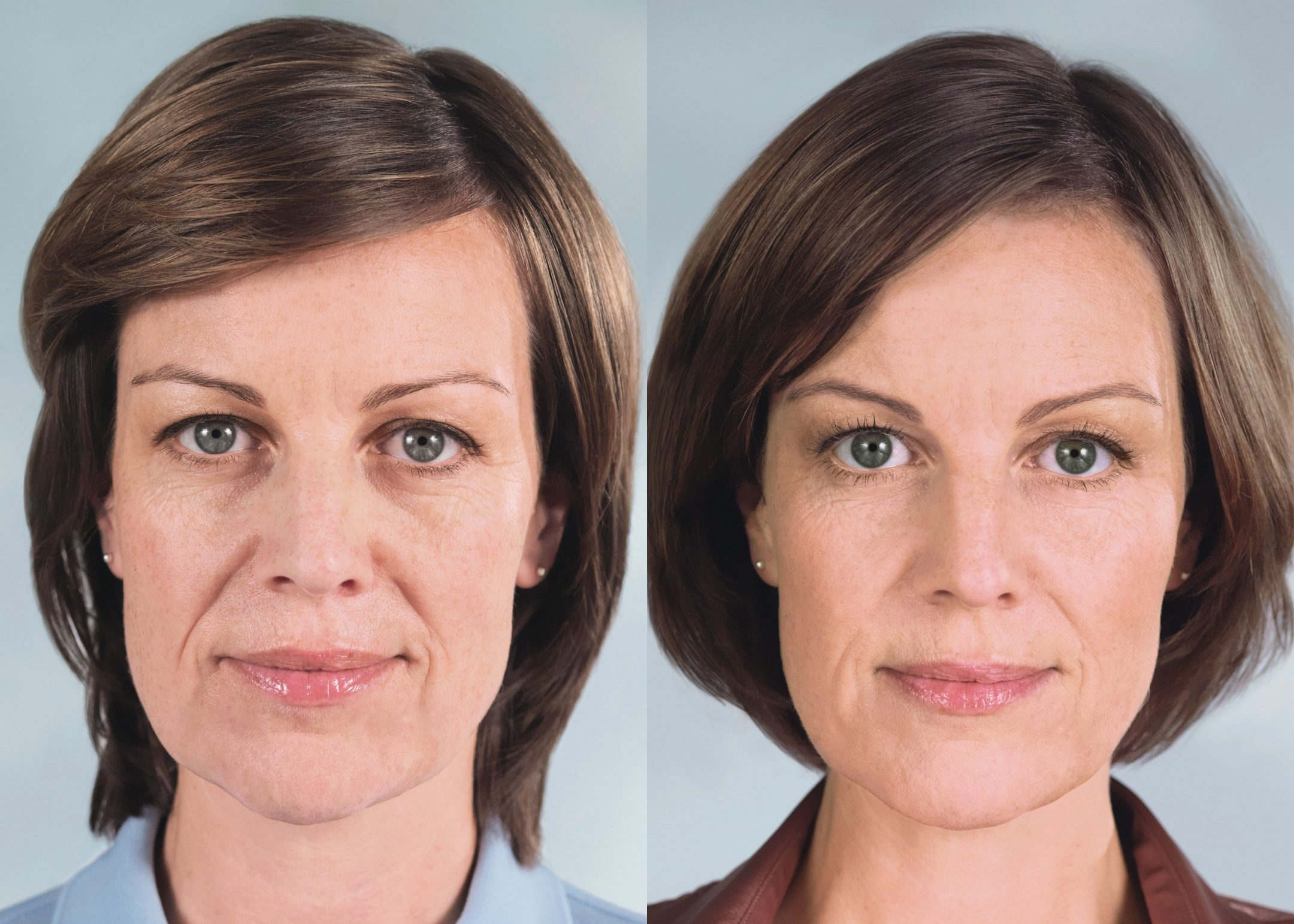 Franca – before and after Sculptra