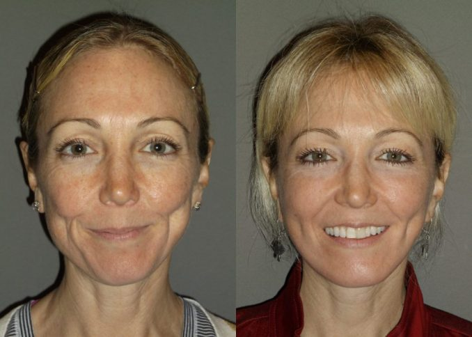 Facelift, neck lift Inland Empire by Dr. Brian Machida, facial plastic surgeon,California