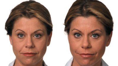 Filler Before & After Dr. Ritu Malhotra Cleveland, OH