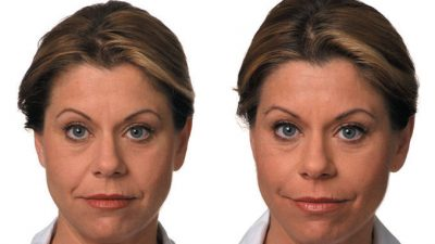 Filler Before & After Dr. Ritu Malhotra Cleveland, OH