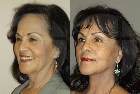 patient-73-before-after-facelift-necklift-by-dr-brian-machida