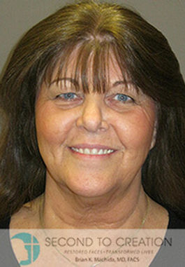 theresa-before-facelift-necklift-by-dr-brian-machida