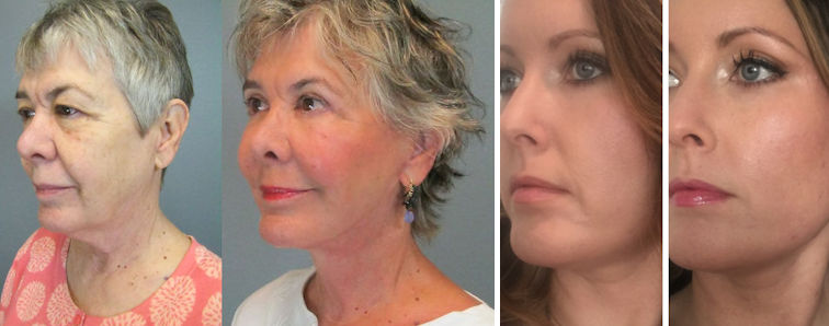 before-after-facelift-liquid-facelift-collage-by-dr-elizabeth-whitaker-of-atlanta-ga