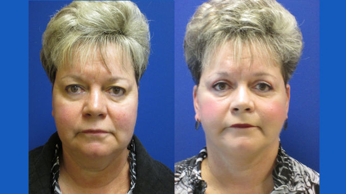 eva-61-before-and-after-laser-assisted-lower-facelift-and-neck-lift-plus-upper-eyelid-surgery-by-dr-ritu-malhotra-of-cleveland-oh