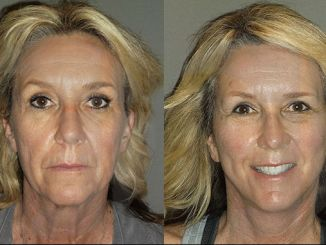 Facelift and browlift by Dr. Brian Machida, Inland Empire, California-Before & After photo