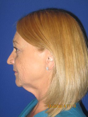 female-55-before-facelift-and-browlift-by-dr-arnold-almonte