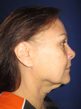 Allison, 57, Before Facelift by Dr. Arnold Almonte (ND)