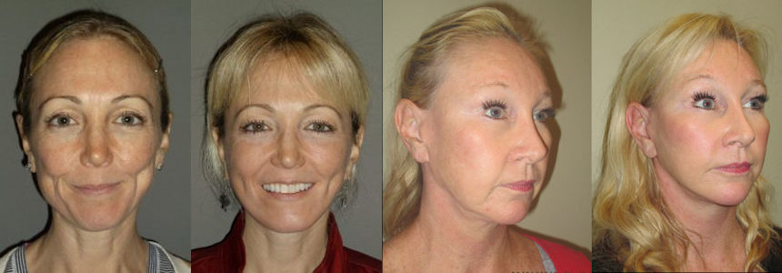 Before & After facelifts by Dr. Brian Machida & Dr. Arnold Almonte