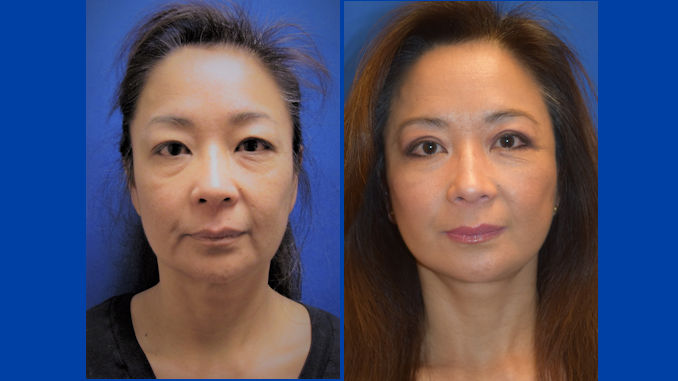 Blepharoplasty, facelift by Dr. Arnold Almonte of metro Sacramento California