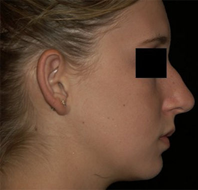 Before rhinoplasty-1 by Dr. Mitchell Blum, facial plastic surgeon, Tracy, metro San Francisco, California