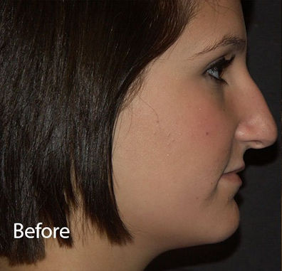 Before rhinoplasty1 by Dr. Mitchell Blum, facial plastic surgeon, Tracy metro San Francisco California
