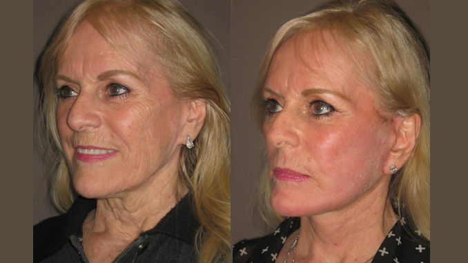Facelift, fractional laser resurfacing Inland Empire by Dr. Brian Machida, facial plastic surgeon, CA, California