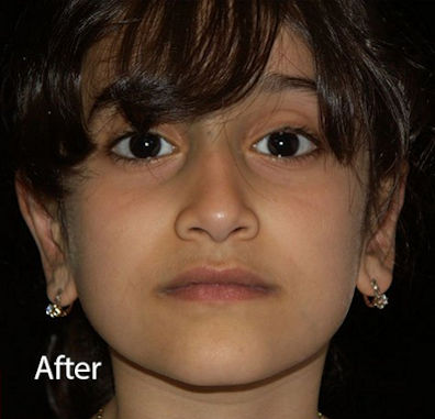 Ear – After Ear Reshaping Otoplasty by Dr. Mitchell Blum, facial plastic surgeon, San Francisco, CA
