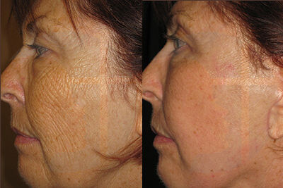 Wrkinkle reduction by fractional laser skin resurfacing by Dr. Brian Machida, facial plastic surgeon, Inland Empire, CA