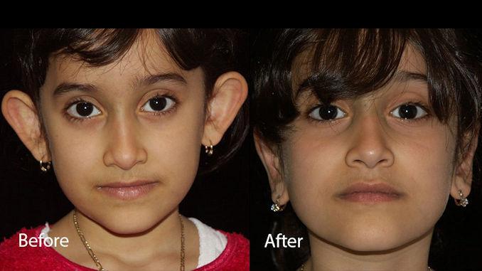 Otoplasty by Dr. Mitchell Blum, facial plastic surgeon, Tracy, San Francisco, California treat big ears