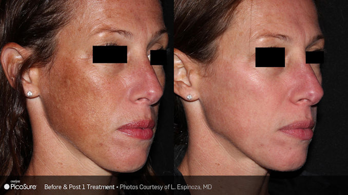 PIcosure-complexion discoloration removal offered by Dr. Brian Machida, facial plastic surgeon, Inland Empire, California