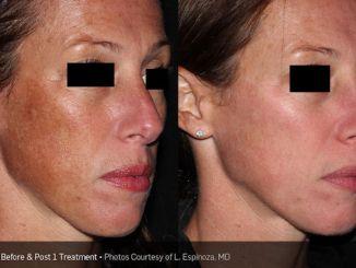 PIcosure Inland Empire, PicoSure, complexion, brown spots, age spots, sun spots, Dr. Brian Machida, facial plastic surgeon, Inland Empire, California