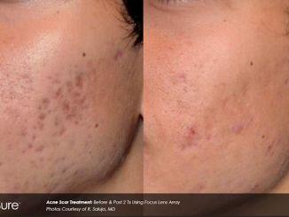 acne scars, PicoSure, acne scar treatment, Dr. Brian Machida. Inland Empire, California