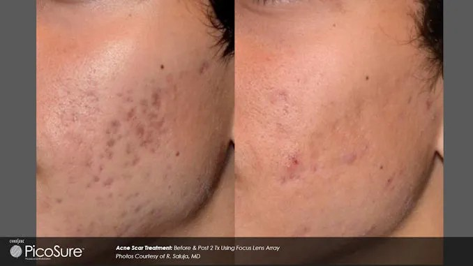 acne scars, PicoSure, acne scar treatment, Dr. Brian Machida. Inland Empire, California