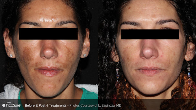 PicoSure facial rejuvenation offered by Dr. Brian Machida, facial plastic surgeon, Inland Empire, California