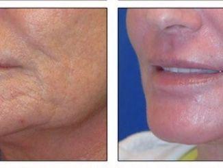 J-Plasma skin resurfacing wrinkles lip & chin by Dr. Arnold Almonte, Sacramento, CA