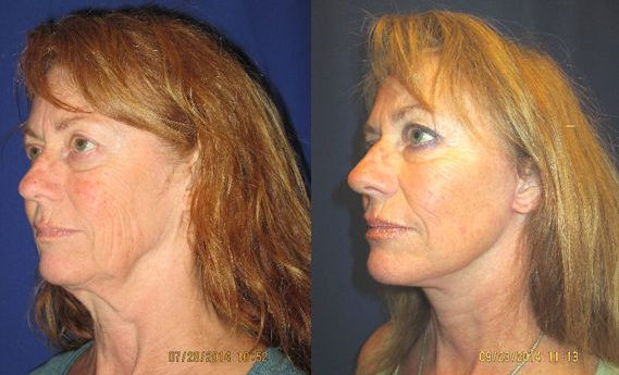 chin implant, facelift by Dr. Mitchell Blum, facial plastic surgeon, San Francisco, Bay Area, CA, Before and After