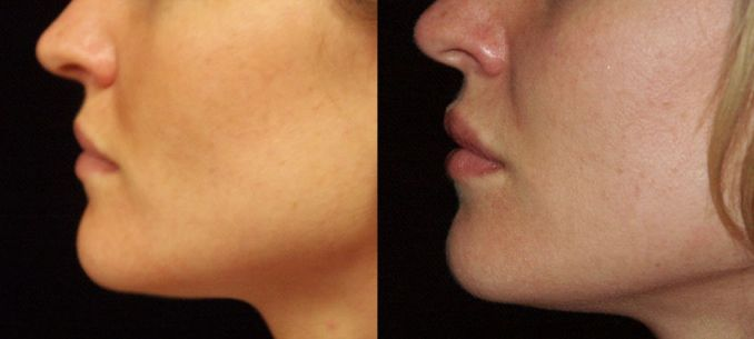 fillers, Juvederm, Restylane, Radiesse, Dr. Mitchell Blum, facial plastic surgeon, San Francisco, Bay Area, California