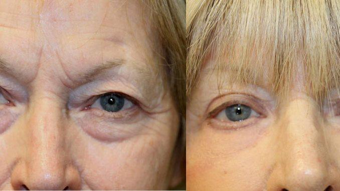 Renuvion, J-Plasma, blepharoplasty, eyelid surgery, offered by Dr. Brian Machida, facial plastic surgeon, Inland Empire, CA