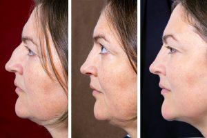 double chin liposuction, facelift, Dr. Brian Machida, facial plastic surgeon, Inland Empire, Los Angeles, California, CA