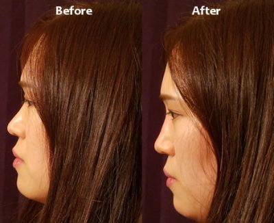 nonsurgical nose job Inland Empire, liquid rhinoplasty, liquid nose job by Dr. Mitchell Blum, facial plastic surgeon, San Francisco Bay Area, California, CA Before and After photo