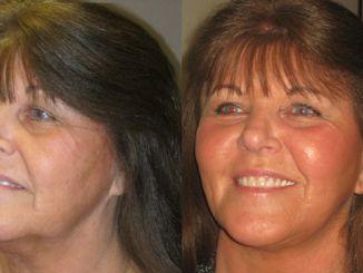 facelift,, neck lift, blepharoplasty, laser skin resurfacing by Dr. Brian Machida, facial plastic surgeon, Inland Empire, California, CA