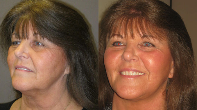 facelift price, facelift price Inland Empire,Facelift Inland Empire, facelift cost, Inland Empire,blepharoplasty, laser skin resurfacing by Dr. Brian Machida, facial plastic surgeon, Inland Empire, California, CA Before and After photo