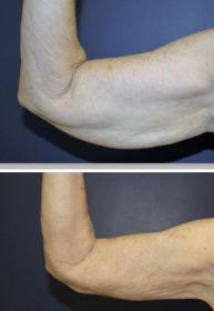 J-Plasma subdermal body skin tightening flabby arms bat wings offered by Dr. Ritu Malhotra, Enhanced Image Center, Cleveland, OH, Ohio