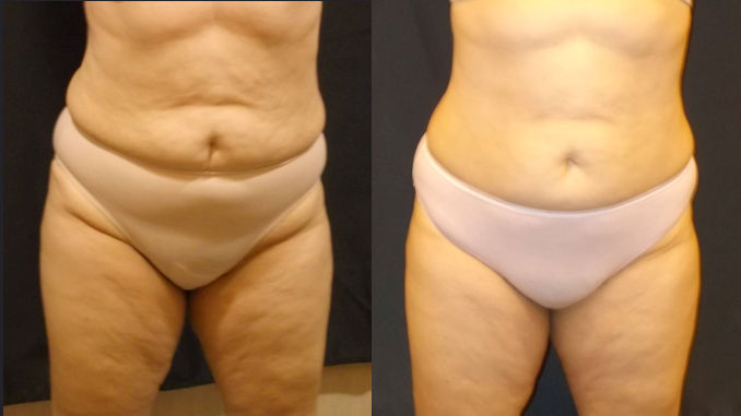 Before and After SculpSure, non-invasive, liposuction alternative, offered by Dr. Brian Machida