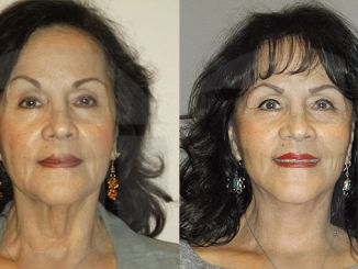 Eliminate turkey neck, double chin, facelift, neck lift, Inland Empire by Dr. Brian Machida, facial plastic surgeon