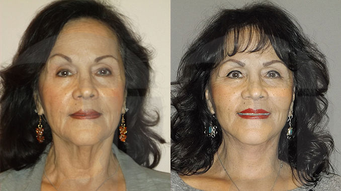 facelift Inland Empire, facelift costEliminate turkey neck, double chin, facelift, neck lift, Inland Empire by Dr. Brian Machida, facial plastic surgeon